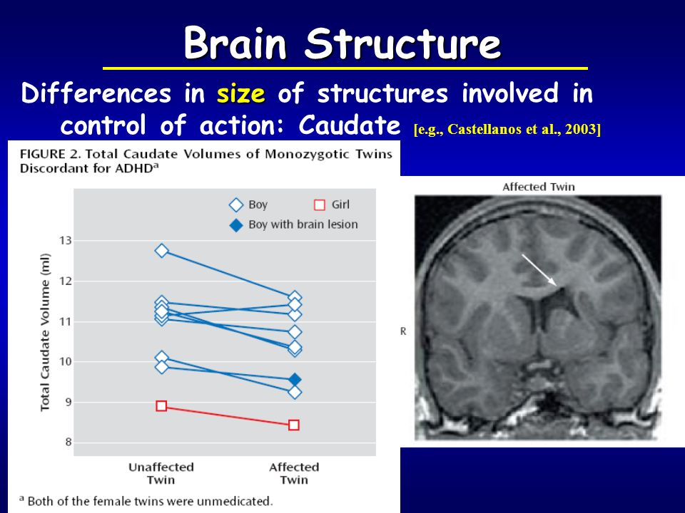 Brain Structure Differences in size of structures involved in control of action: Caudate [e.g., Castellanos et al., 2003]